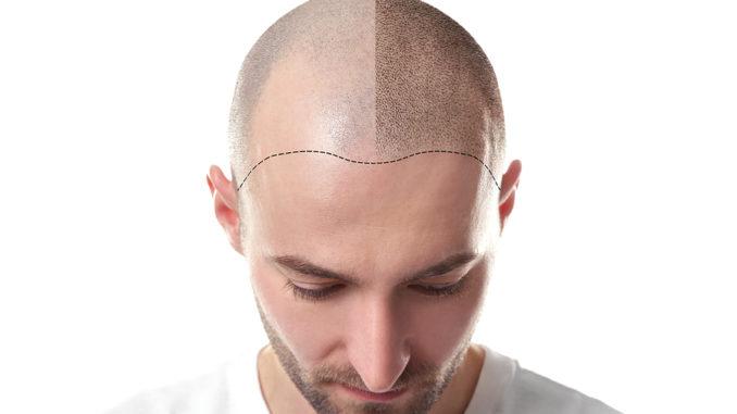 Haarpigmentierung in Wien