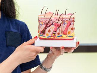 Haarwurzelentzündung Kopfhaut Bild