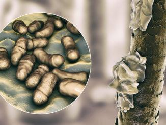 Haarausfall durch Folliculitis decalvans