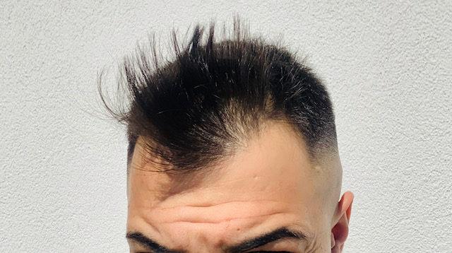 Das Expertenauge erkennt Haarausfall sofort