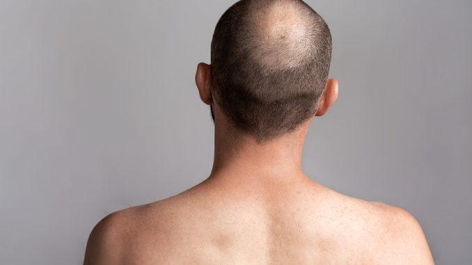 Haartransplantation – der Spenderbereich