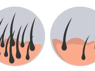CHOI Haartransplantation Methode