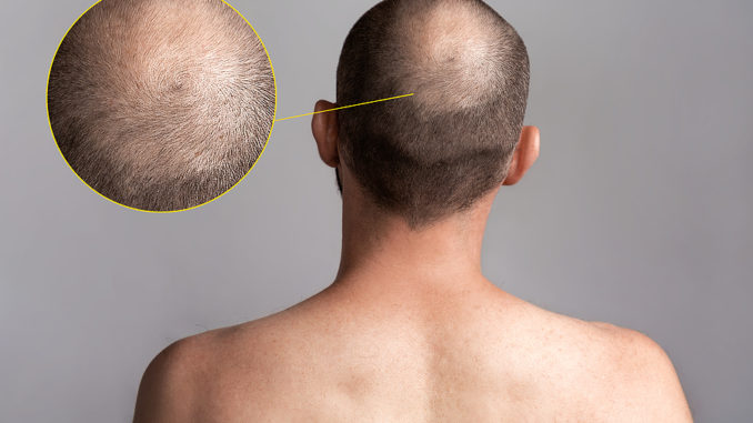 Gründe für Haarausfall