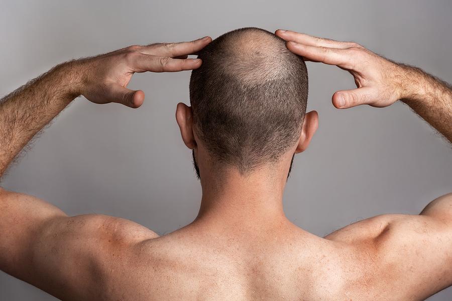Heilungsprozess nach der Haartransplantation
