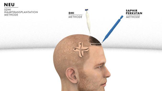 SDHI Haartransplantation Methode