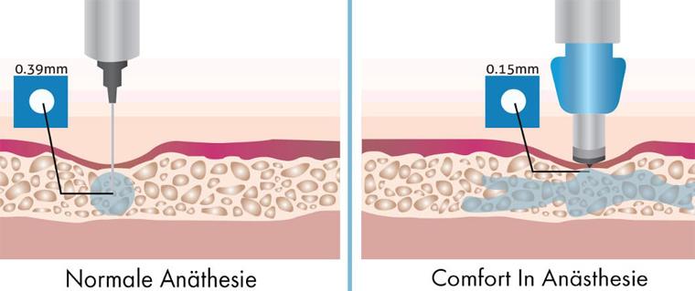 Comfort-In-Methode