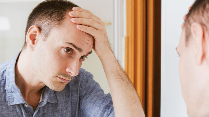 Einseitiger Haarausfall