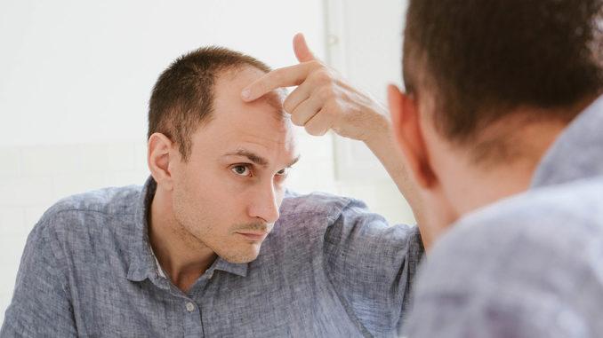Alopecia congenita Angeborene Haarlosigkeit