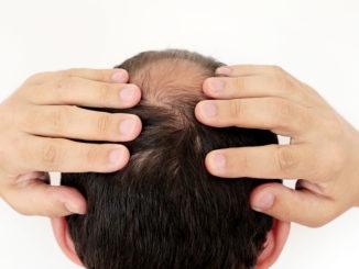 Haartransplantation bei Tonsur