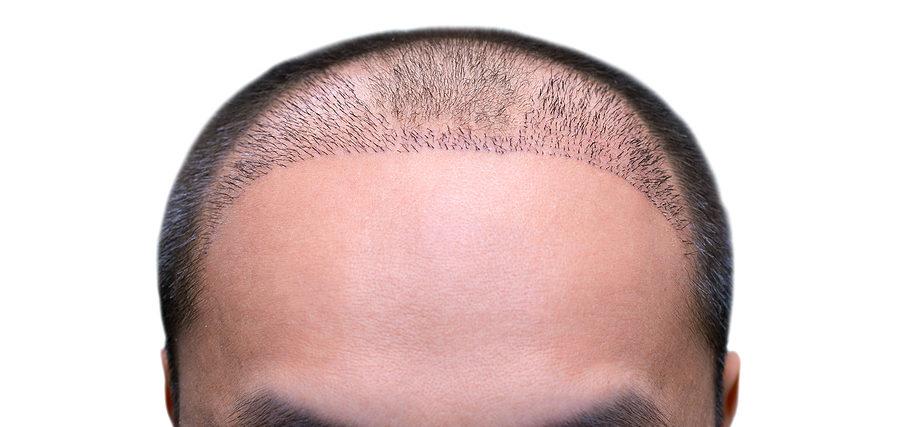 Haarverfplanzung Qualität