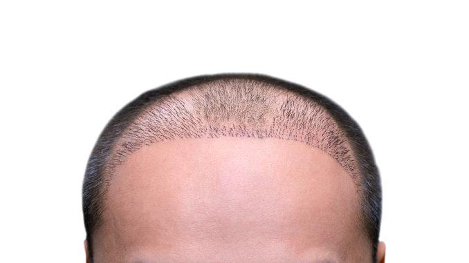 Saphire FUE Haartransplantation Methode