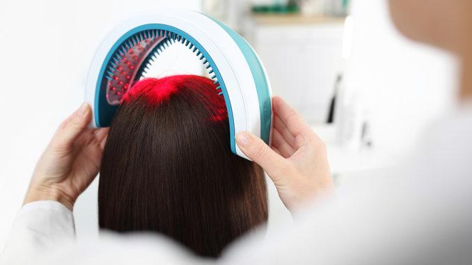 Haartransplantation der Zukunft